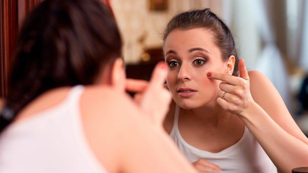 acne-sintomas-desbalance-hormonal-mujeres