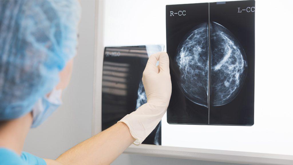 mamografia-rayos-x