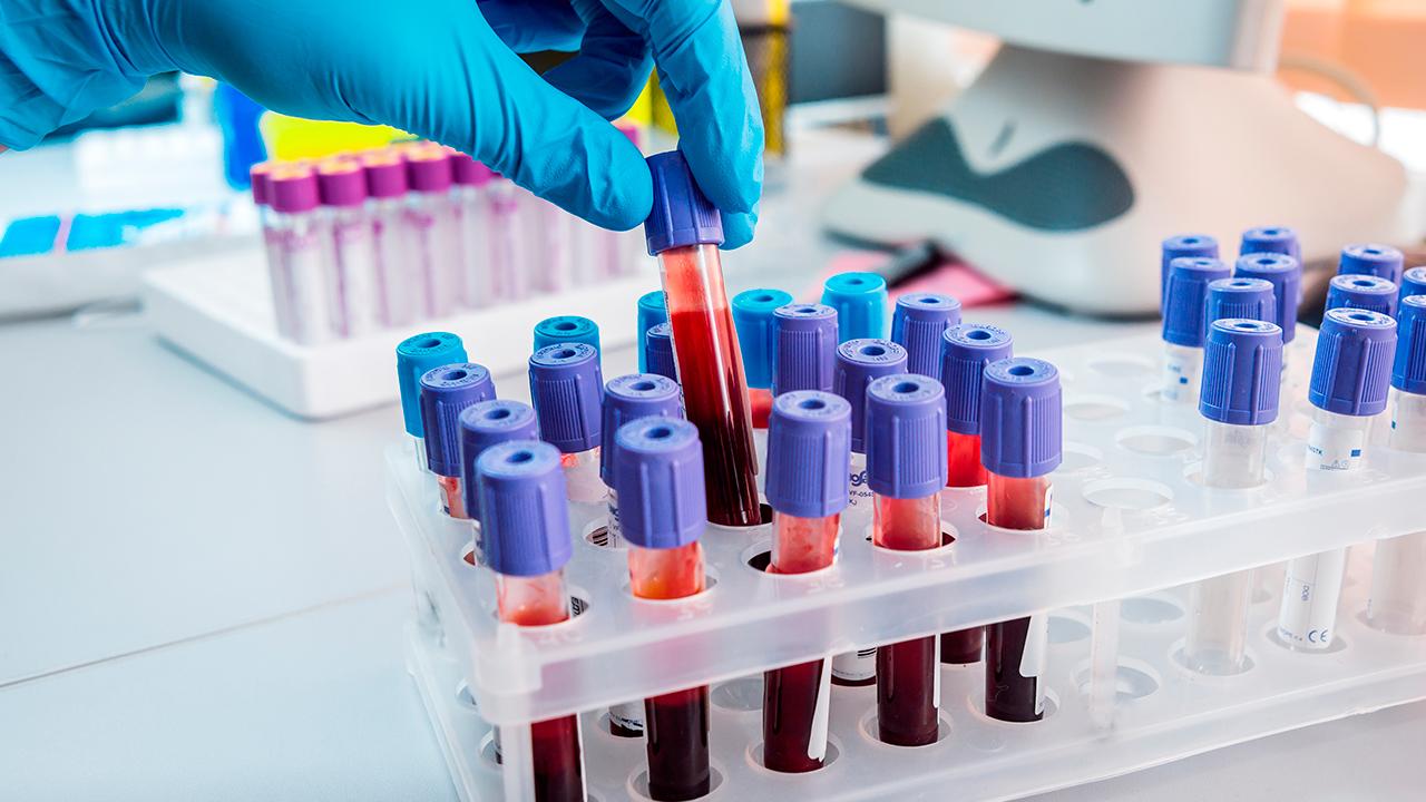 niveles-normales-de-trigliceridos-en-la-sangre
