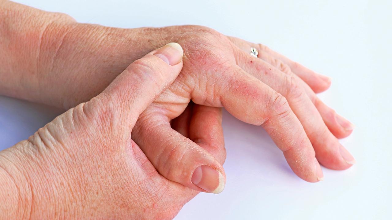 psoriasis-enfermedades-piel-adulto-mayor